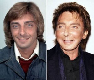 20140418_67799_barry-manilow-addicted-to-plastic-surgery-300x257