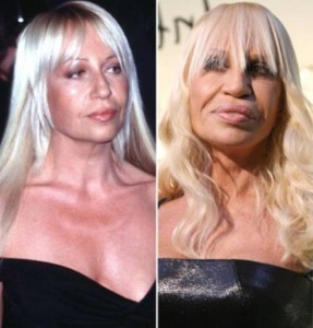 20140418_67799_donatella-versace-plastic-surgery-by-50