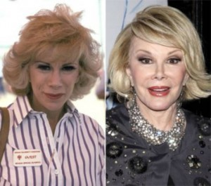 20140418_67799_joan-rivers-addicted-to-plastic-surgery-300x265