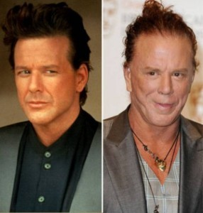 20140418_67799_mickey-rourke-plastic-surgery-before-after-286x300
