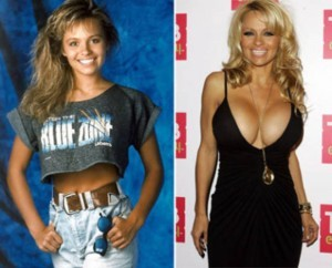 20140418_67799_pamela-anderson-plastic-surgery-by-age-40-300x242
