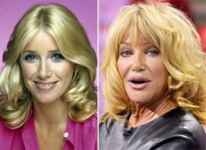 20140418_67799_suzanne-somers-tv-stars-plastic-surgery-300x219