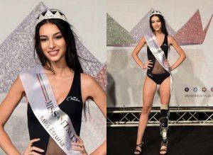 Chiara-Bordi-Miss-con-protesi